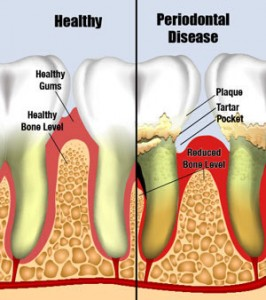 Picture of periodontal disease